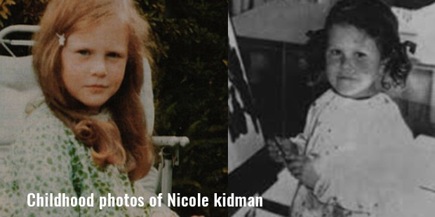 childhood photos of nicole kidman