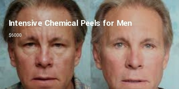 intensive chemical peels for men