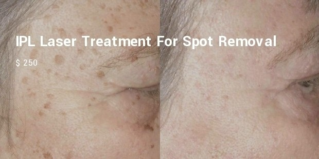 ipl laser treatment for spot removal
