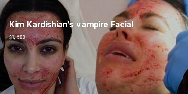 kim kardishians vampire facial