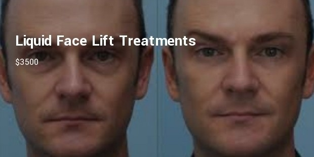 liquid face lift treatments