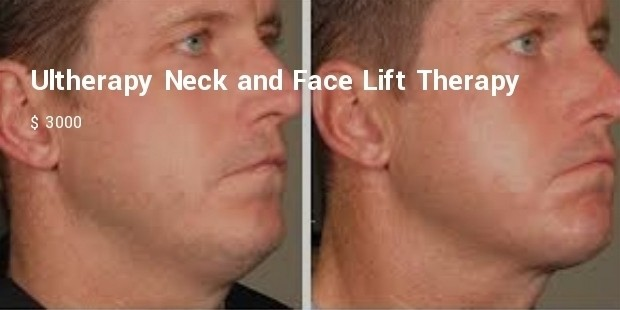ultherapy neck and face lift therapy